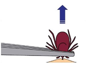 tick-removal